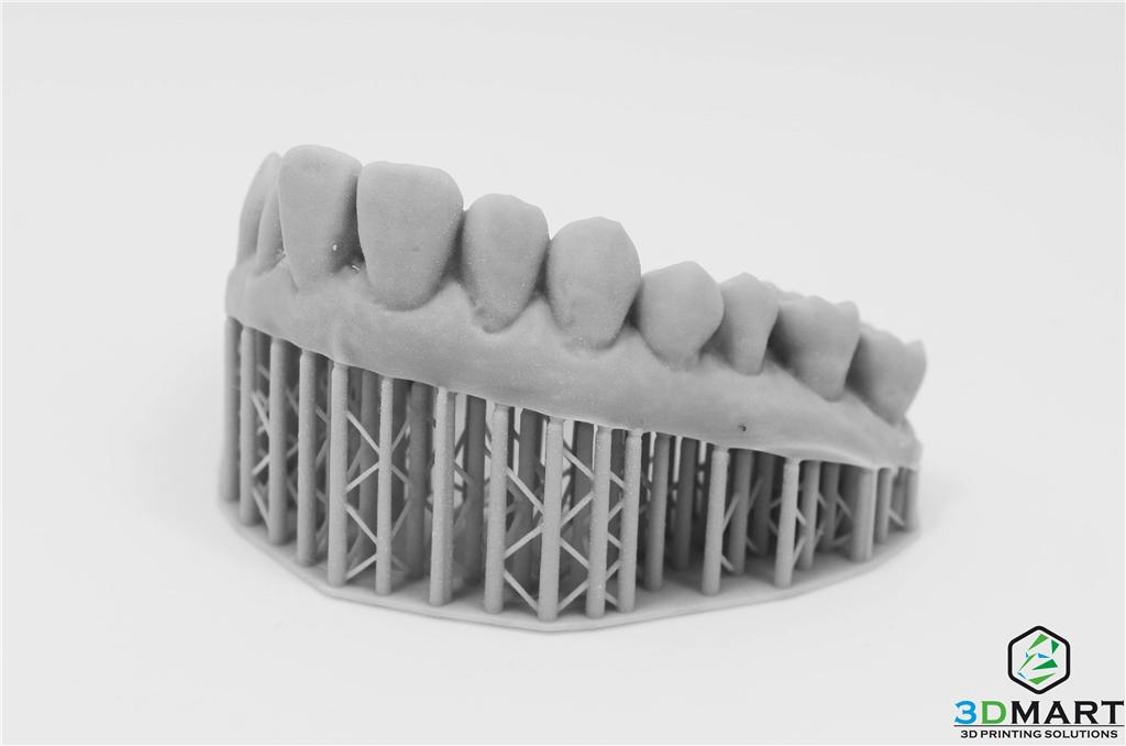 牙齒模型側面
