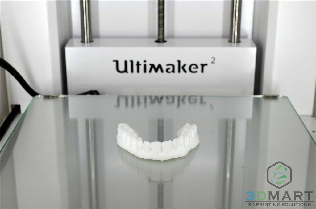 3D列印,牙齒,齒模,HIPS,