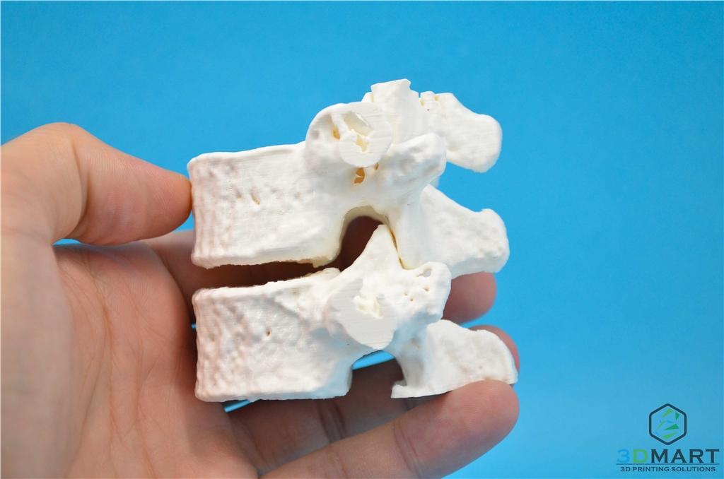3DMART Ultimaker3 雙噴頭 3D列印機 水溶性支撐  骨頭模型成品